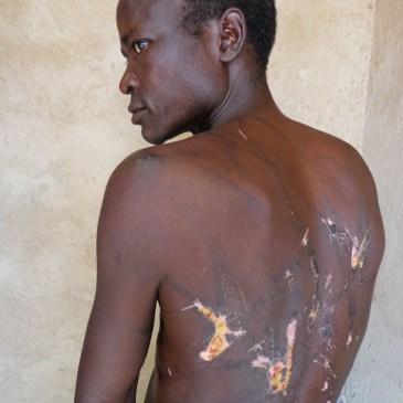 Cet Homme a été torturé par les agents de Habré
