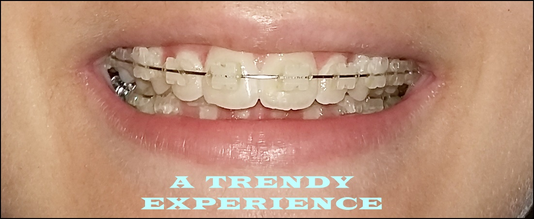 apparecchio denti quanto costa