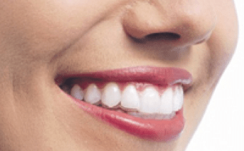 Metallic Ceramic Braces Treatment