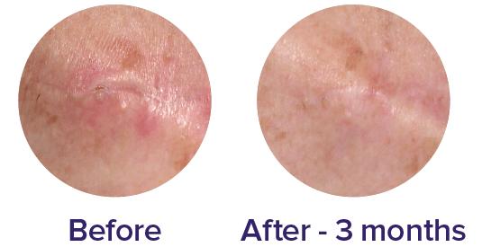biocorneum scar cream