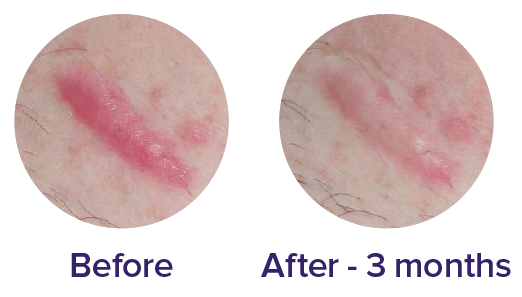 Biocorneum scar cream treatment