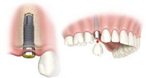 """""""Dental-Implant-Murah-di-Jakarta"""""""