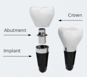 """""""dental-implant-di-jakarta"""""""