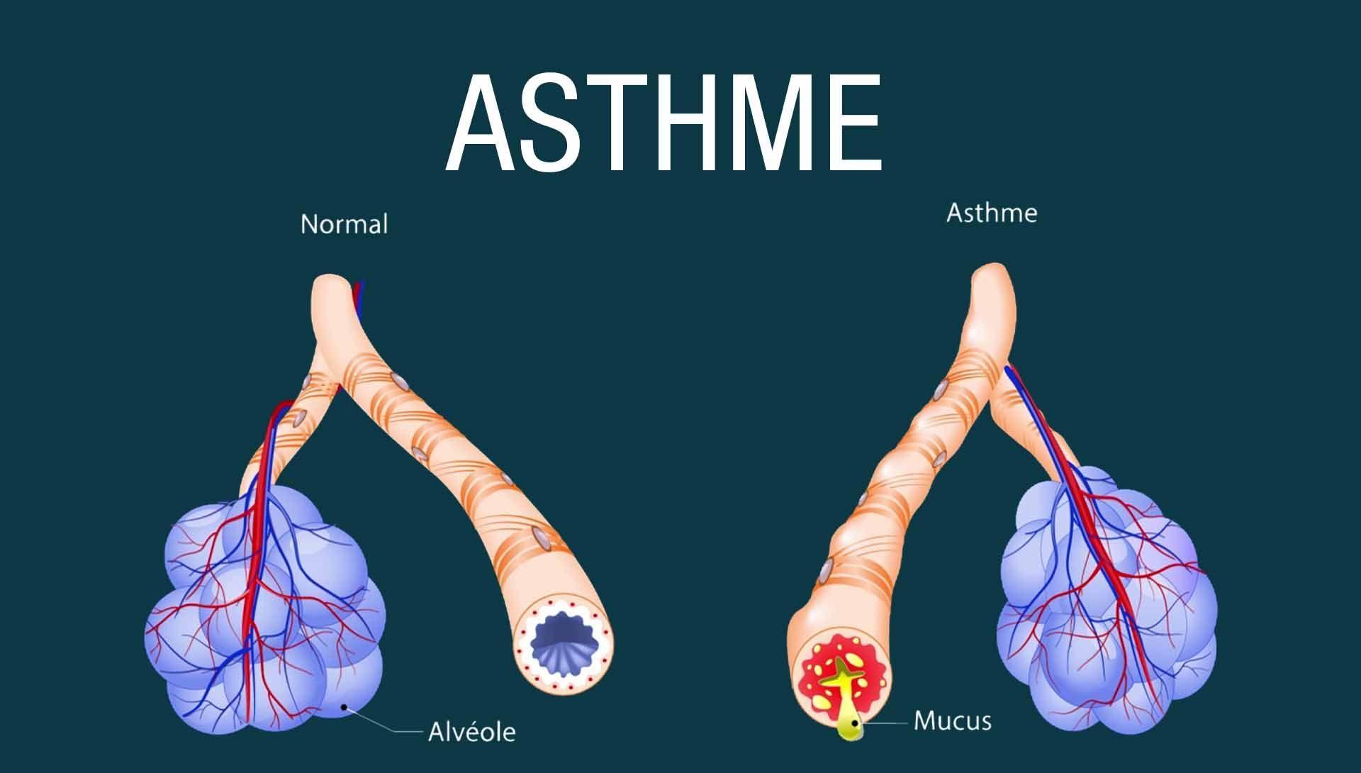 Pr Georges Ouédraogo : «L'asthme a un traitement efficace»