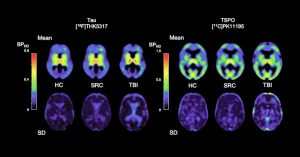 PET traces reveal the long-term consequences of brain injuries