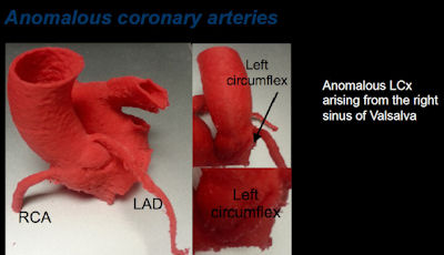 anomalous coronary arteries