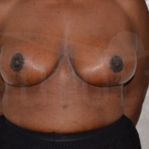 Breast uplift before and after photos Aurora Clinics 16