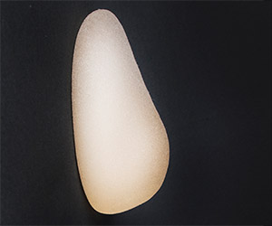 Aurora Clinics: Photo of Teardrop implant