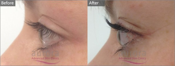 Aurora Skin Clinic: Before and After Photo of LVL Lashes