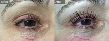 Aurora Skin Clinics: Before and After Photo of LVL Lashes