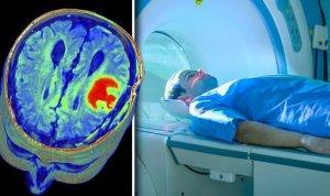 Autism MRI