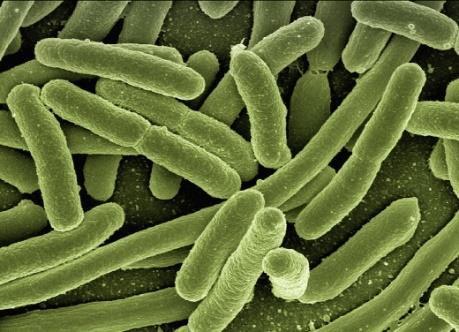 Mikroorganismy, rozpuštěné a nerozpuštěné  látky v dešťové vodě
