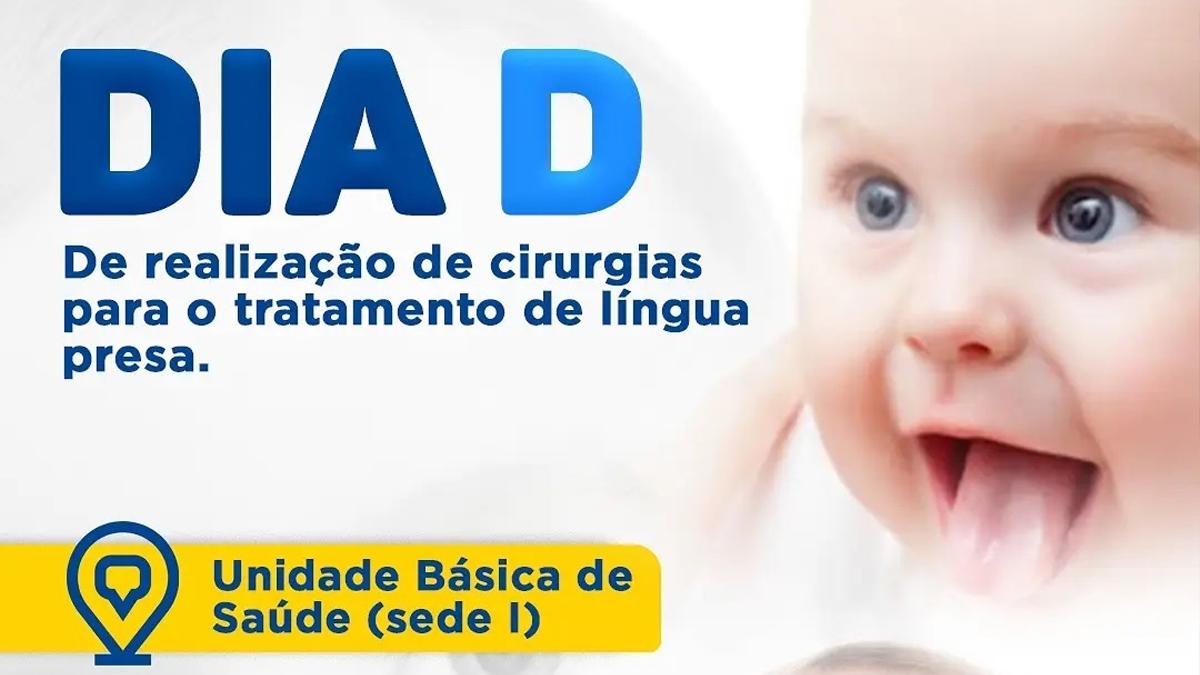 """Secretaria da Saúde de Itapiúna realizará o dia """"D"""" de cirurgias para o tratamento de língua presa"""
