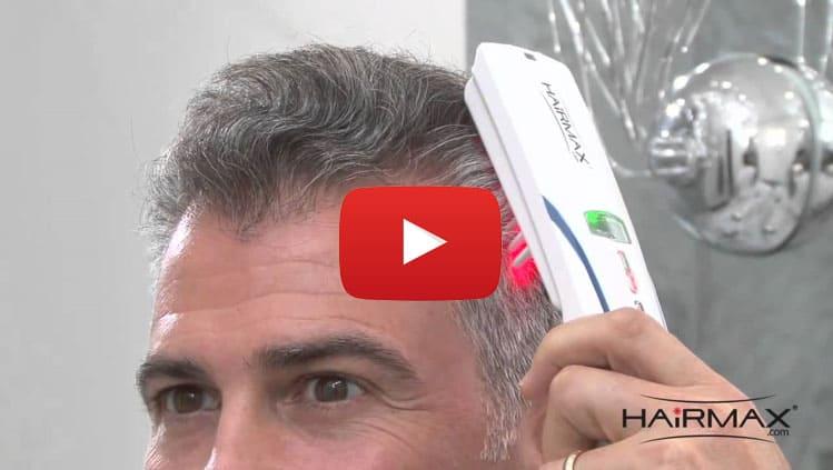 Laser hair loss treatment men women madison wisconsin