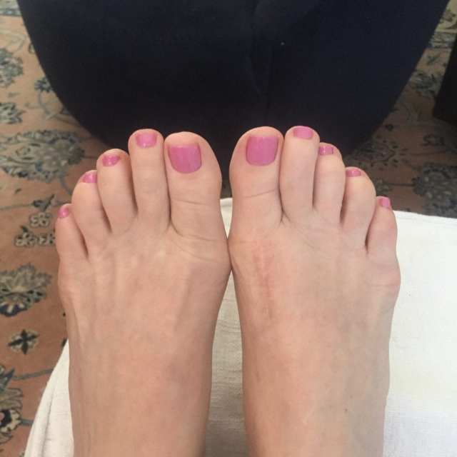60 year old toes