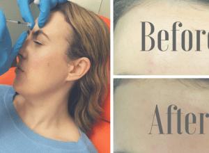 Getting Botox - My experience www.awelltravelledbeauty.com
