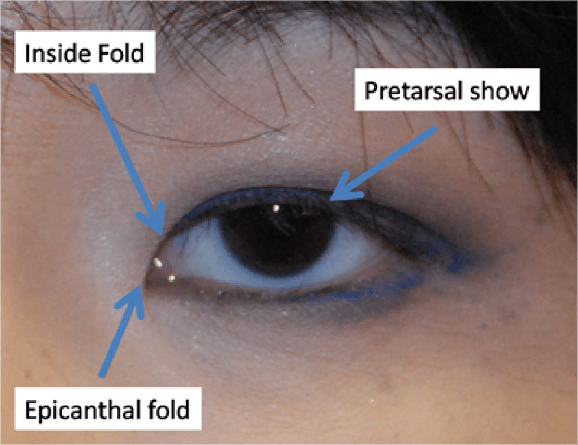 Pretarsal show and Epicanthal fold are important terms ...