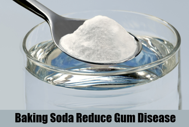 Baking Soda Reduce Gum Disease
