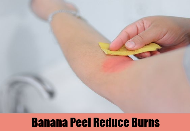 Banana Peel Reduce Burns