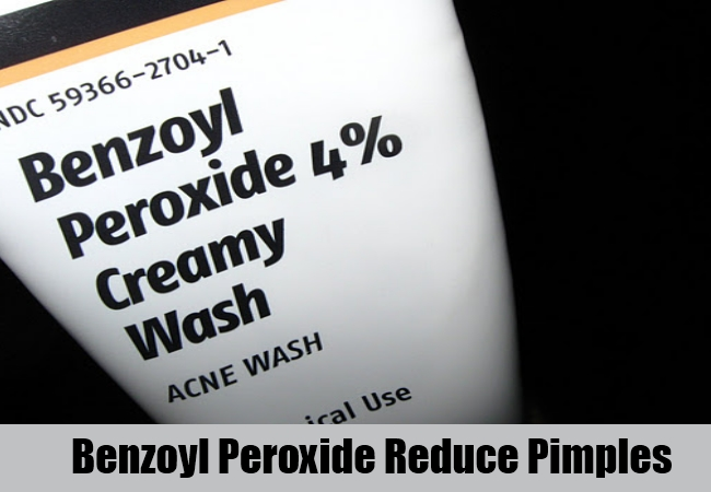 Benzoyl Peroxide Reduce Pimples