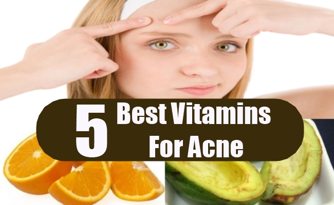 Best Vitamins For Acne