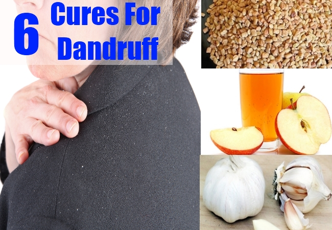 Cures For Dandruff