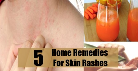 Home Remedies For Skin Rashes