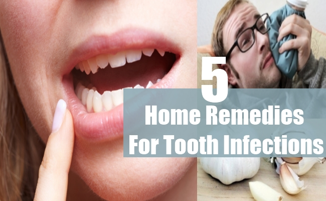Home Remedies For Tooth Infections