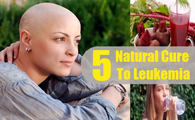 Top 5 Natural Cures For Leukemia - How To Cure Leukemia Naturally