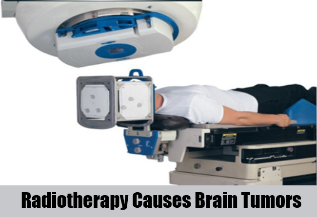 Radiotherapy Can Cause Brain Tumors
