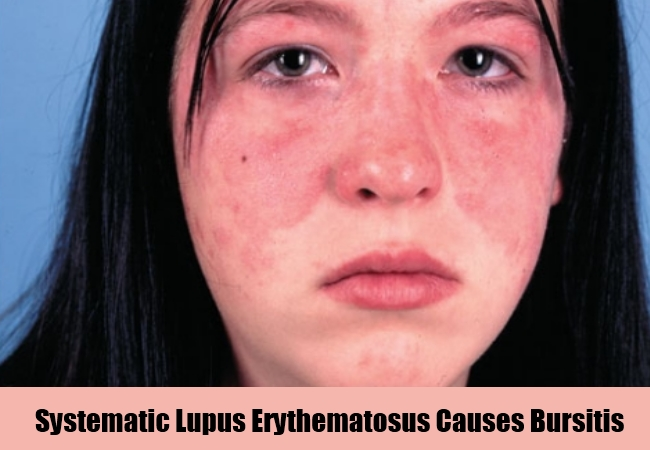 Systematic Lupus Erythematosus