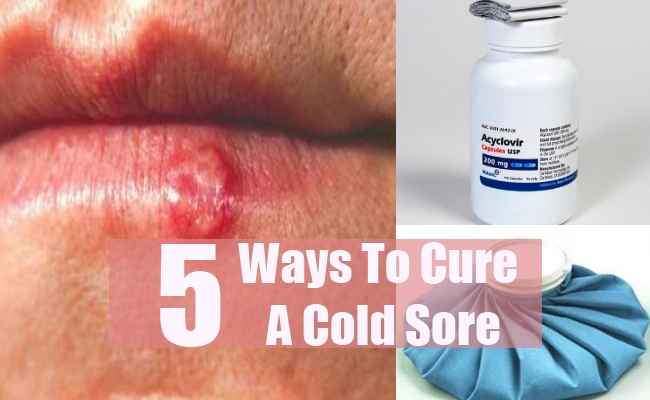 Ways To Cure A Cold Sore