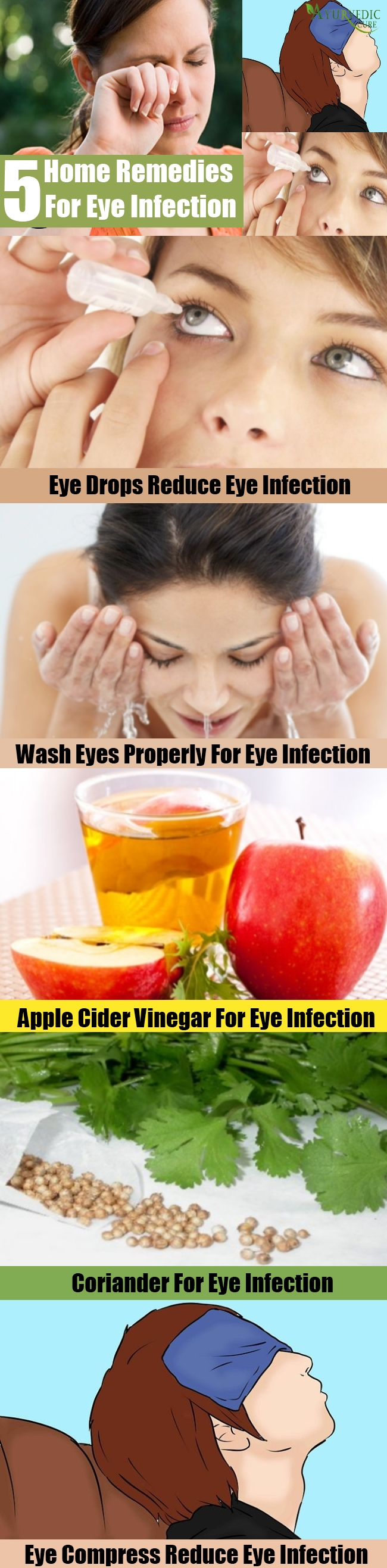 5 Effective Home Remedies For Eye Infection