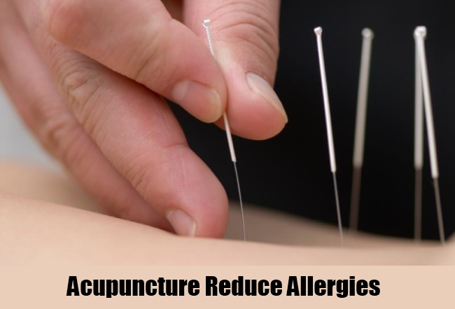 Acupuncture Reduce Allergies