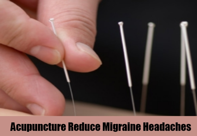 Acupuncture Reduce Migraine Headaches