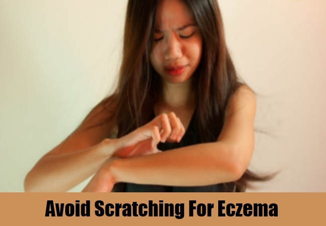 Avoid Scratching For Eczema