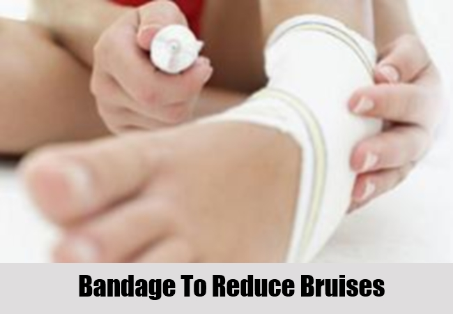 Bandage To Reduce Bruises