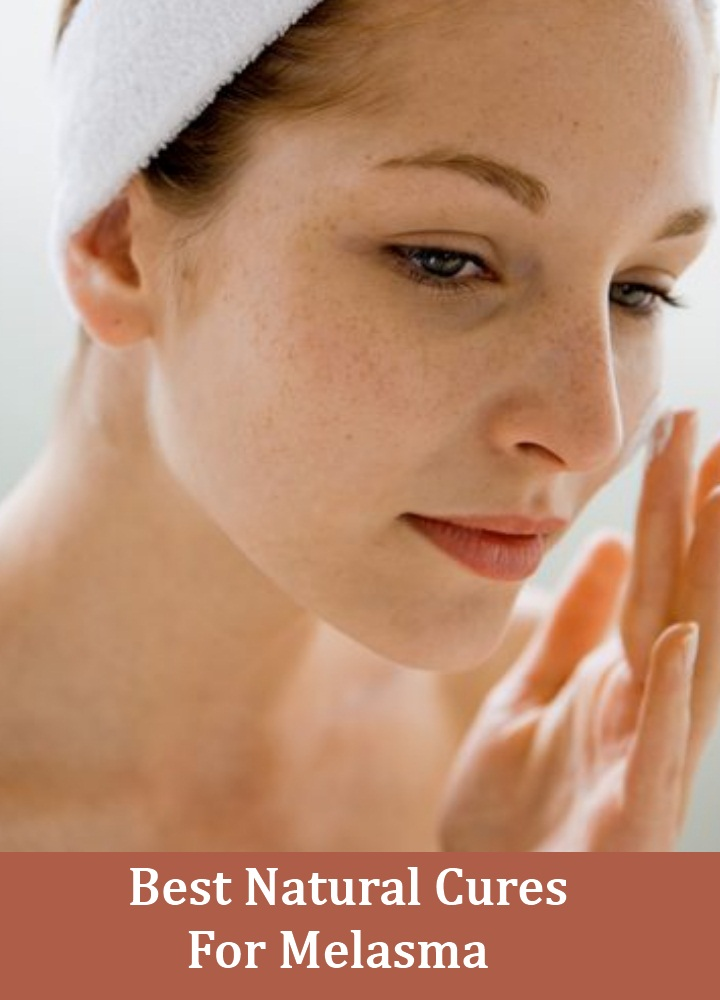 5 Best Natural Cures For Melasma