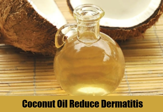 Coconut Oil Reduce Dermatitis
