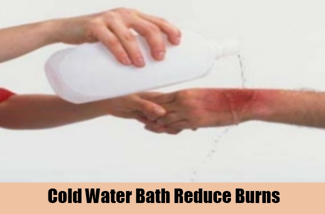 Cold Water Bath Reduce Burns