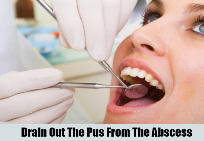 Drain Out The Pus From The Abscess