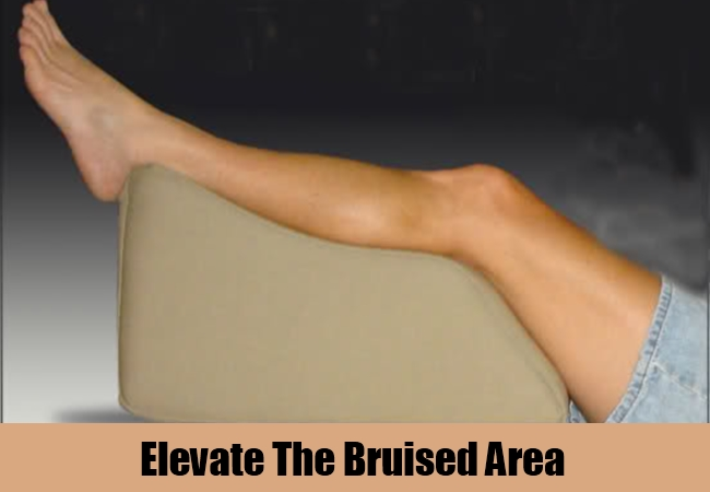 Elevate The Bruised Area