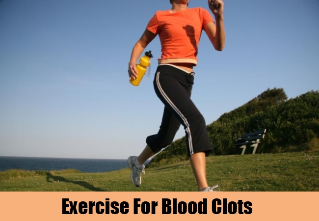 Exercise For Blood Clots