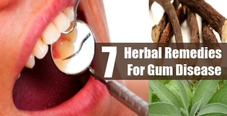 Herbal Remedies For Gum Disease