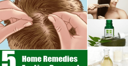 Home Remedies For Lice Removal