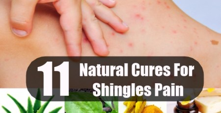 Natural Cures For Shingles Pain