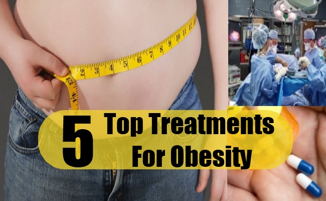 Top Treatments For Obesity