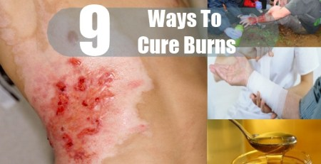 Ways To Cure Burns
