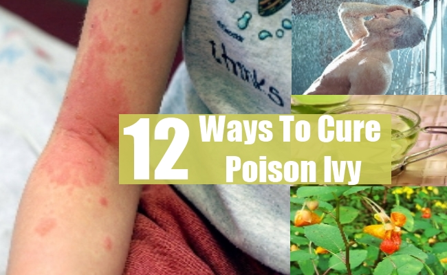 Ways To Cure Poison Ivy