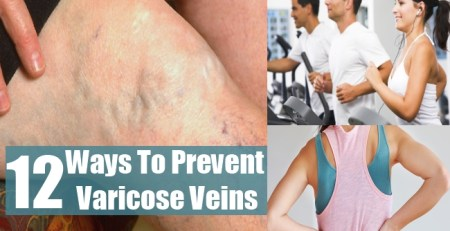 Ways To Prevent Varicose Veins